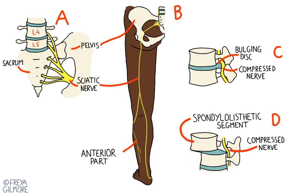 Diagram to show location of sciatic nerve and causes of radicular pain/sciatica