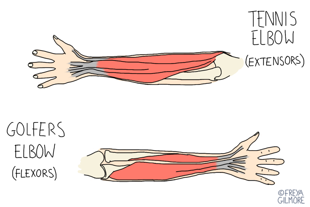 Tennis and Golfers Elbow