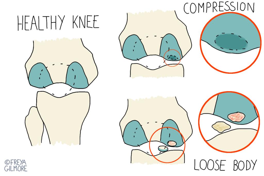 Diagram to show basic pathophysiology of osteochondritis dessicans