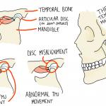 Clicky Jaw (Internal TMJ Derangement)