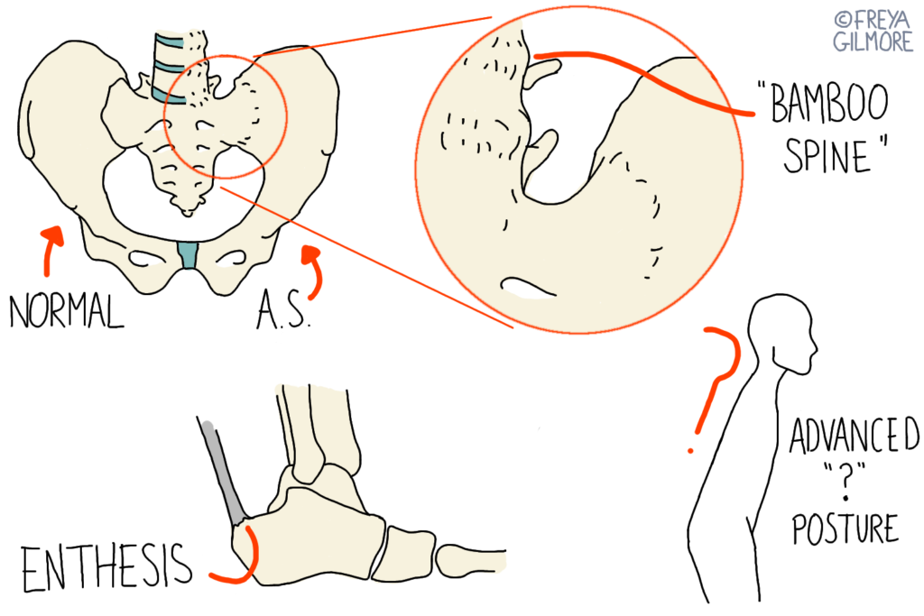 "Diagrams to show AS fusion of SIJ, enthesitis, and the ""?"" posture. Late stage AxSpA"