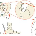 AxSpA & AS (Ankylosing Spondylitis)