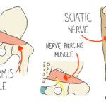 Piriformis Syndrome: the other Sciatica