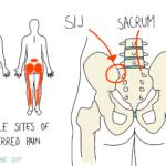 The Sacroiliac Joint (SIJ)