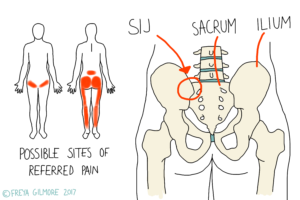 Diagram of the sacroiliac joint and referred pain patterns