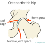 Does Osteopathy Help with Osteoarthritis?