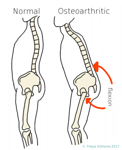 Postural changes with osteoarthritis