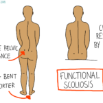The Two Types of Scoliosis