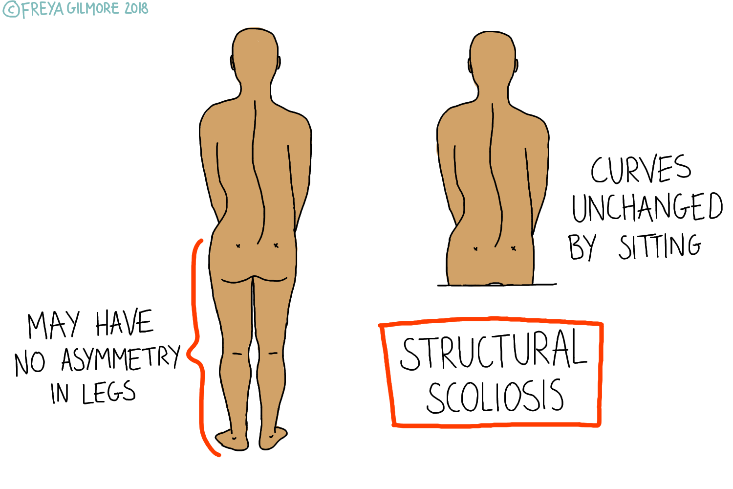 The Two Types Of Scoliosis Freya Gilmore