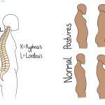 Kyphosis and Lordosis