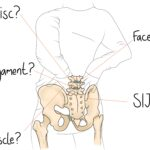 NSLBP: Non-Specific Lower Back Pain