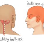 Cervicogenic Headaches (Biondi, 2005)