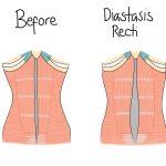 Diastasis Recti: abdominal muscle separation post-partum
