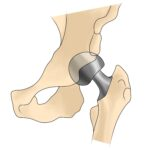 Managing delayed surgery for arthritis